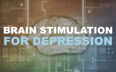 Brain Stimulation For Depression